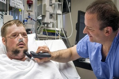 In this July 3, 2016 photo provided by the Mayo Clinic, Dr. Samir Mardini shaves the face of his patient, Andy Sandness, days after leading a team that performed the first face transplant surgery at the hospital. Over the years, the two say they've become as close as brothers. (Eric M. Sheahan/Mayo Clinic via AP)