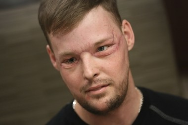 In this Jan. 24, 2017, photo, face transplant recipient Andy Sandness attends a speech therapy appointment at Mayo Clinic in Rochester, Minn. (AP Photo/Charlie Neibergall)