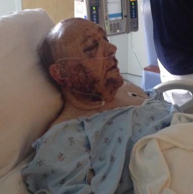 Larry Barton at UAB hospital. (Jessica Barton)