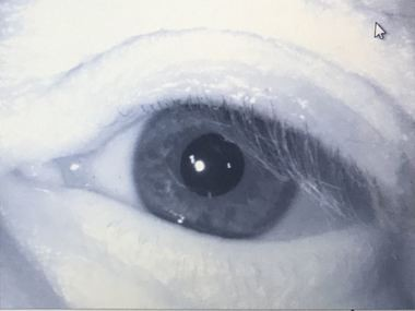 The Jefferson County Sheriff's Office became the first law enforcement agency in Alabama to implement the use of iris scans.