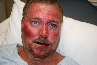 Crime scene photo of Robert Bryant at Huntsville Hospital following arrest on Aug. 22, 2012. (Photo by Madison County Sheriff's Department)