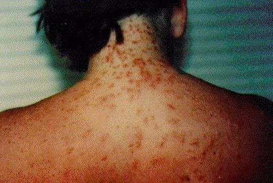 Sea lice, which have been reported at Pensacola Beach, can cause a rash and itching. (Contributed photo/Florida Department of Public Health)