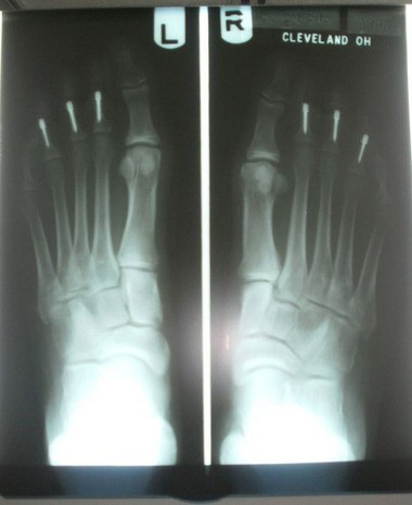 This photo shows X-rays of Cynthia Pittman-Osula's feet after surgery to straighten her six hammertoes. The permanent MiToe implants seen in the image should keep the toes aligned and avoid the potential of the condition returning, doctors say.