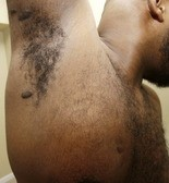 Gregory Love displays the scars from a police bullet that passed through his chest and lodged in his arm.