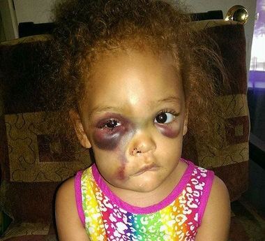 AvaLynn's injuries as shown on the Justice For AvaLynn Facebook page.