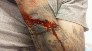 Earl Roberts provided this photo showing the laceration on his left forearm that he claims he suffered during a Feb. 28, 2016, incident at Ann Arbor's recycling plant.