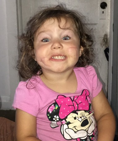 A Northern Michigan girl suffered serious facial injuries when he was mauled by a pit bull at her foster home, court records show.