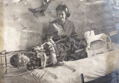 Steven Matich is shown in a halo traction device as his mother Betty Kochom looks on in this photo published in The Bay City Times Sunday, Dec. 19, 1965. Matich was having his spine stretched in the days leading up to two surgeries aimed at straightening his spine. His spine was growing in the wrong direction as a result of polio.