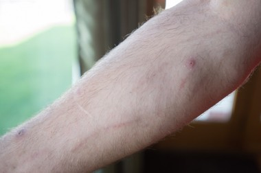 A Bay City resident who is a recovering heroin addict shows scarring on his arm that resulted from his drug use.