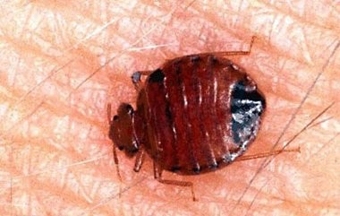 FILE PHOTO: In this undated photo released July 24, 2001, by the University of Florida, a common bedbug is engorged with blood after feeding on a human arm. Bedbugs are back in 2006, and they're not just rearing their rust-colored heads in New York City. Authorities say it's a global crisis: Exterminators who handled one or two bedbug calls a year are now getting that many in a week, according to the National Pest Management Association.
