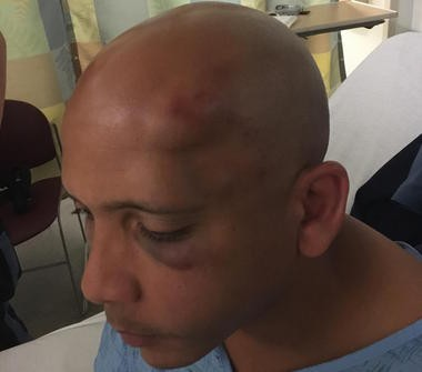 Corrections officer Victor Tapia was attacked at South Woods State Prison on Tuesday, July 26, 2016. (Submitted photo)