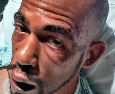 Taharqa Dean, of Glassboro, remains in Cooper University Hospital, in Camden, with injuries members of his family allege were a result of excessive force when Dean was arrested this past Wednesday, Sept. 23, 2015 in Glassboro. Police say Dean became combative and assaulted two police officers while receiving medical attention, kicking an officer in the chest and biting another officer in the leg. Family members say Dean is a diagnosed epileptic and that he had a reaction when he began to regain consciousness. (Submitted Photo)
