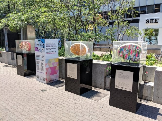Dr. Reichman says the public display of brain-inspired artwork is 'evocative' and stimulates a healthy discussion about lifestyle choices and the risk of dementia.