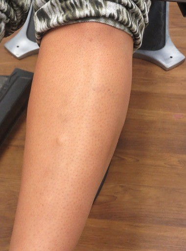 Michelle Medina's leg is shown after her first treatment for varicose veins.