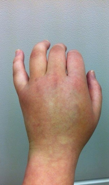 One symptom of RSD is swelling of hands and feet. Shown is Jenny Loder's left hand during an RSD flair up.