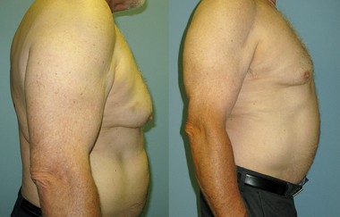 Former Philadelphia Flyer Bernie Parent before (left) his Cool Sculpting procedure and after (right).