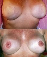 The top photo shows breast mounds created through skin grafts and implants. The bottom photo shows a completed nipple areola micropigmentation.