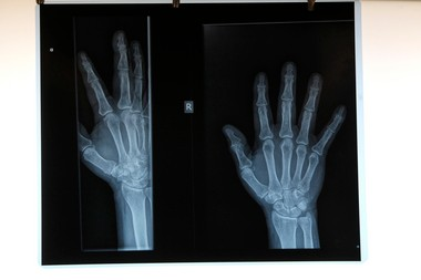 Here are terms commonly used when discussing the Affordable Care Act, also known as Obamacare. An X-Ray is shown in this photo.