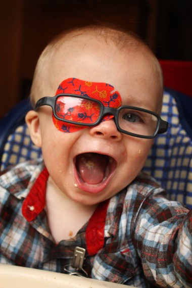Scott Butler, 1, of Banks wears glasses and an eye patch as a result of a congenital cataract.