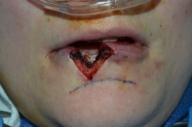 Surgeons had to cut away a part of Christine Shertzer's torn lower lip before sewing it back together.