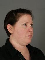 Jennifer Olszewski of Swatara Township before she had a non-evasive procedure to remove excess collagen around her neck.
