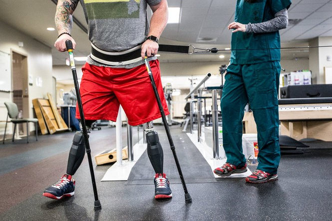 A ground-breaking limb-lengthening program at Walter Reed and two grueling surgeries, months of painful daily bone-lengthening sessions and some six months of recovering following each have finally paid off. Rob Easley is back on his feet in the form of full-sized prosthetic legs that finally work with his newly-lengthened amputated left limb.