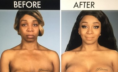 "Utica native Tiffany ""New York"" Pollard gets her breast implants fixed on E! reality TV show ""Botched."""